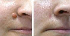 Trápi vás bradavica na tvári či inde na tele a nechcete ísť pod skalpel či tekutý dusík u lekára? Tak vyskúšajte tento účinný domáci recept.