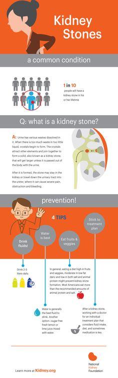 kidney stones infographic