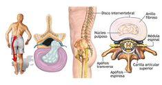 A musculação é muito útil no tratamento de diversas patologias. Porém, se mal executada, pode trazer risco de lesão ao praticante.  A hérnia discal é um diagnóstico clínico muito comum, e é a principal causa cirúrgica