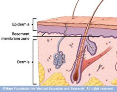 Depending on the type of epidermolysis bullosa, blistering may occur in the top layer of skin (epidermis), the bottom layer (dermis) or the layer that separates the two (basement membrane zone).