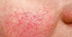 9 Rimedi Naturali per l'Acne Rosacea (Couperose)