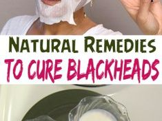 Natural remedies to cure blackheads