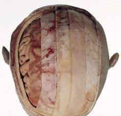 From right to left: scalp, periosteum, bone, dura mater, arachnoid mater, pia mater, brain tissue