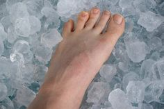 A Runner's Guide To Ice Baths – PodiumRunner How To Eat Ginger, Get Rid Of Bunions, Runners Guide, Ice Baths, Sprained Ankle, Podiatry, What Happened To You, Sore Muscles, Legs