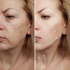 High tech copper peptide serum organic Skin Roller, Botox Alternative, Botox Fillers, Eye Wrinkle, Younger Skin, Anti Aging Skin Care, Skin Treatments