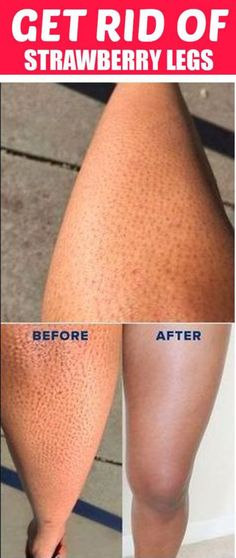 Here in this post you will get to know how r to get rid of Strawberry Legs Treatment With Simple Homemade Remedies . The post How to Get Rid of Strawberry Legs Fast- 7 Best Home Remedies appeared first on Skin care. Beauty Care, Beauty Skin, Beauty Hacks, Beauty Ideas, Diy Beauty, Homemade Beauty Tips, Face Beauty, Homemade Skin Care, Long Hair Tips