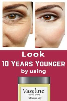 Look 10 Years Younger Using Vaseline ! Very Simple Beauty Hack Easiest way to get younger looking skin by using vaseline … Look 10 Years Younger Using Vaseline ! Very Simple Beauty Hack Easiest way to get younger looking skin by using vaseline … Beauty Hacks Skincare, Beauty Products, Skincare Routine, Face Products, Wrinkle Remover, Lint Remover, Younger Looking Skin, Younger Skin, Look Younger