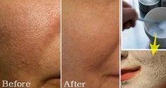6 Easy And Simple Solutions To Get Rid Of Big Pores!