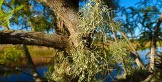 Get Rid Of Dandruff Naturally Using Healthy Alternatives