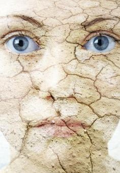 dry flaky #skin conditions