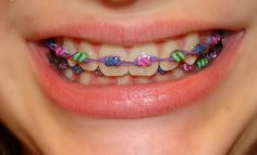 braces now come in every color of the rainbow