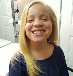 Albinism, Face, The Face, Faces, Facial