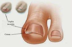 Rimedio naturale per le unghie incarnite del piede - Vivere Più Sani