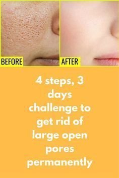 Skin Care Remedies 4 steps, 3 days challenge to get rid of large open pores permanently If you are suffering from Open Pores, Large Pores than you MUST check this remedy here I have shared a very Simple Tips For Oily Skin, Moisturizer For Oily Skin, Skin Tips, Skin Care Tips, Skin Secrets, Anti Aging Skin Care, Natural Skin Care, Natural Beauty, Open Pores On Face