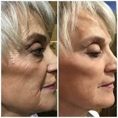 Amazing Nerium results! See for yourself. Enough said. www.hrichardson.nerium.com