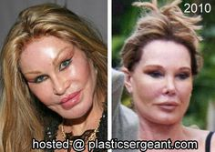 Jocelyn Wildenstein plastic surgery before and after – Jocelyn Wildenstein Plastische Chirurgie vor und nach – – Marilyn Monroe Plastic Surgery, Plastic Surgery Pictures, Bad Plastic Surgeries, Before After Hair, Surgery Doctor, Celebrity Plastic Surgery, Lip Injections, Two Faces, Without Makeup