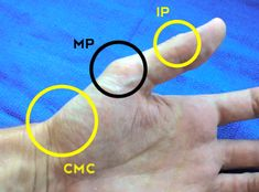 thumb-joints.jpg 327×242 pixels