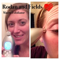 Removes 5 million dead skin cells in 5 minutes! Make your skin think it is 20 again! Rodan And Fields Redefine, Dead Skin, How To Remove, How To Make, Your Skin, Things To Think About, Skin Care, Make It Yourself, Skincare Routine