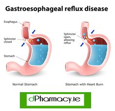 Heartburn and Gastroesophageal Reflux Disease (GERD). The stomach releases strong acids to help break down the food. If the esophageal sphincter opens too often or does not close tight enough stomach acid can reflux or seep back into the esophagus damagin Gerd Symptoms, Heartburn Symptoms, Reflux Symptoms, Heartburn Relief, Heartburn Medicine, Acid Reflux Home Remedies, Natural Remedies For Heartburn, Natural Cures