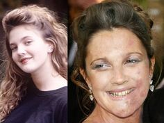 46 Horribly Aged Celebrities - Page 41 of 47 - Trendy Peek Plastic Surgery Before After, Plastic Surgery Gone Wrong, Celebrities Then And Now, She Was Beautiful, Life Is Hard, Why People, Superstar, How To Look Better, The Past