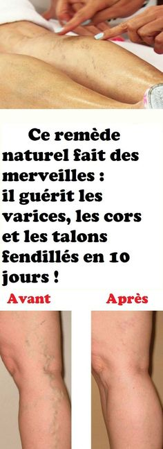 Astuce Beauté Soins Cosmétiques Affirmations, Life Hacks, Health Fitness, Important, Harry Potter, France, Culture, Movie, Sport