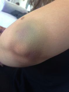 Elbow bruise done in college