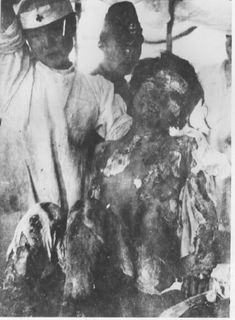 War. She was just a junior high school girl, only 14 years old … 500,000 people died in the flash of radioactive heat … thousands of bodies were evaporated in ther incinerating heat … and 50 years on survivors are still suffering from the effects.