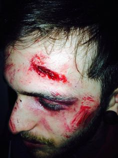 Special effects car crash wound to the head.