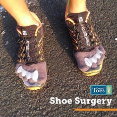 Now that is devotion to natural foot health. Cut your shoes, not your feet! #spreadyourtoes #correcttoes #shoesurgery