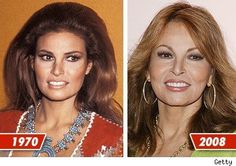 Chatter Busy: Raquel Welch Plastic Surgery