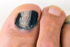 Grab detailed information about black toenail fungus. Use prescription-strength home remedies to get rid of black toenail fungus. Blue Toe Nails, Blue Toes, Toe Nail Color, Black Acrylic Nails, Black Toenail Fungus, Fingernail Fungus, White Pedicure, Pedicure Nails, Toenails