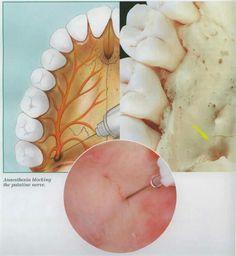 Greater palatine nerve block