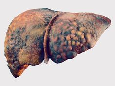 Hepagard: Natural Liver Support | Nutreance Liver Diet, Healthy Liver, Liver Cleanse, Fatty Liver, Healthy Eating, Liver Cancer, Liver Disease, Disease Symptoms, Heart Disease