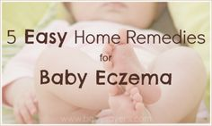 5 easy home remedies for baby eczema. They're good for mom, too!