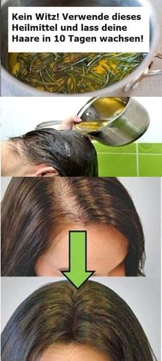 No joke! Use this remedy and leave your hair in . Verwende dieses Heilmittel und lass deine Haare in 10 Tagen wachsen! … No joke! Use this remedy and let your hair grow in 10 days! Beauty Tips Easy, Beauty Hacks, Jumpsuit Outfit Dressy, Natural Cosmetics, Hair Journey, Grow Hair, Hair Hacks, Healthy Hair, How To Lose Weight Fast