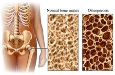 Osteoporosis is a condition where the bones lose bone tissue and small holes or weakened areas are formed leaving them fragile and brittle. It has been estimated that over 28 million Americans are at risk of developing osteoporosis, and the majority of them are women over the age of 50. In fact, experts say that …