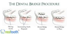 """Are you completely missing one or more teeth? If so, a #dental #bridge is an option to consider. A dental bridge involves placing dental #crowns on both sides of your missing tooth and then inserting a replacement tooth between them. The #replacement #tooth is then attached to the dental crowns on either side to create a strong and permanent connection (or """"bridge""""). www.realtooth.in"""