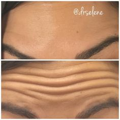 Sometimes a picture is worth a thousand words. #lifechanging * * #drselene #botox #brotox #beforeandafter #agegracefully #roseville #rocklin #grassvalley #granitebayca #lincolnca