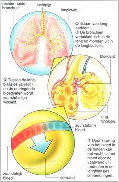 http://www.menselijk-lichaam.com/wp-content/uploads/Longoedeem.jpg - Longoedeem - http://www.menselijk-lichaam.com/ademhaling/longoedeem
