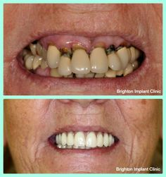 http://www.brightonimplantclinic.co.uk/ Before and After Dental Implants #ToothImplants