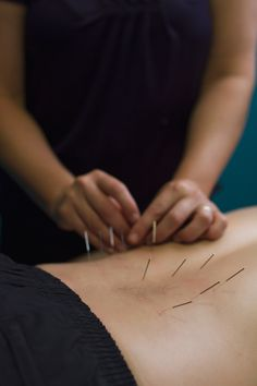 Acupuncture; Traditional Chinese; Western; Treatment; Physionorth, Townsville, QLD