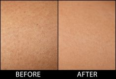 Coconut Oil Uses - Keratosis Pilaris Before After Shot 9 Reasons to Use Coconut Oil Daily Coconut Oil Will Set You Free — and Improve Your Health!Coconut Oil Fuels Your Metabolism! Beauty Care, Beauty Skin, Beauty Hacks, Coconut Oil Hair Mask, Do It Yourself Fashion, Coconut Oil Uses, Beauty Recipe, Tips Belleza, Oils For Skin