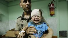 A wounded Palestinian child is treated in hospital after a reported Israeli strike on a compound housing a UN school in the Jabaliya refugee camp, Gaza (30 June 2014)