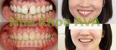 Niềng răng thưa thưa giúp người thực hiện khắc phục được khuyết điểm răng thưa gây mất thẩm mỹ giúp họ sở hữu một hàm răng đều đặn, hoàn hảo hơn. Bên cạnh đó còn hạn chế được những căn bệnh răng miệng thường gặp tránh ảnh hưởng xấu đến sức khoẻ. Eyes, Beauty, Cosmetology