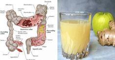 Wiele osób posiada poważne problemy ze zdrowiem, ponieważ ma zatruty organizm. Poznaj 4 składniki, które oczyszczą Twoje jelita, a poczujesz się lepiej!