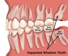 Possible consequences of impacted wisdom teeth. Wisdom if taken care in the best ways while it grows, it will stay with you till the end. #ToothExtraction #WisdomTooth #DentalCare #DentalHealth TheDentalHUb #Gurgaon
