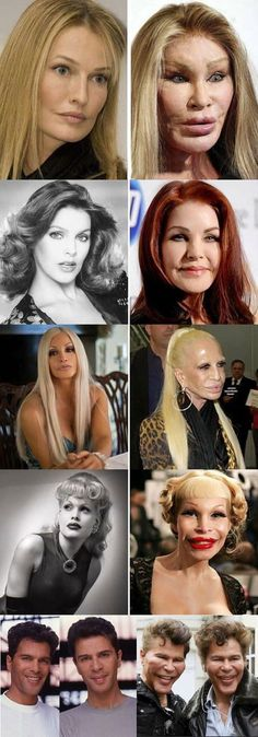 Miracle of modern plastic surgery Facts about plastic surgery: 5 boob jobs went wrong boob facts jobs plastic surPl .Facts about plastic surgery: 5 Boob jobs went wrong Bob Facts Jobs plastic SurPlastic surgery Facts: Plastic Surgery Quotes, Plastic Surgery Gone Wrong, Surgery Humor, Celebrity Plastic Surgery, Ivanka Trump, Liposuction, Acne Scars, Beauty Hacks, Beauty Tips