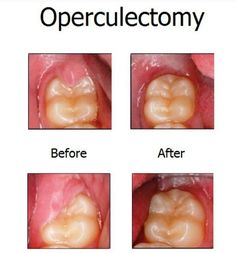 Dentaltown - An operculum is a flap of gum tissue that covers some of the chewing surface of a tooth, most commonly a lower wisdom teeth. An operculectomy is done of the opposing wisdom tooth is traumatizing the operculum.