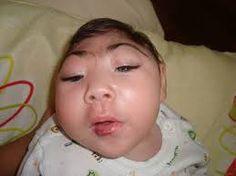 Resultado de imagem para imagens microcefalia no brasil