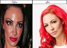 Best After Before Plastic Surgery Photos Of Jodie Marsh An Additional Cosmetic Lover - http://www.aftersurgeryjob.com/plastic-surgery-photos-jodie-marsh-additional-cosmetic-lover/